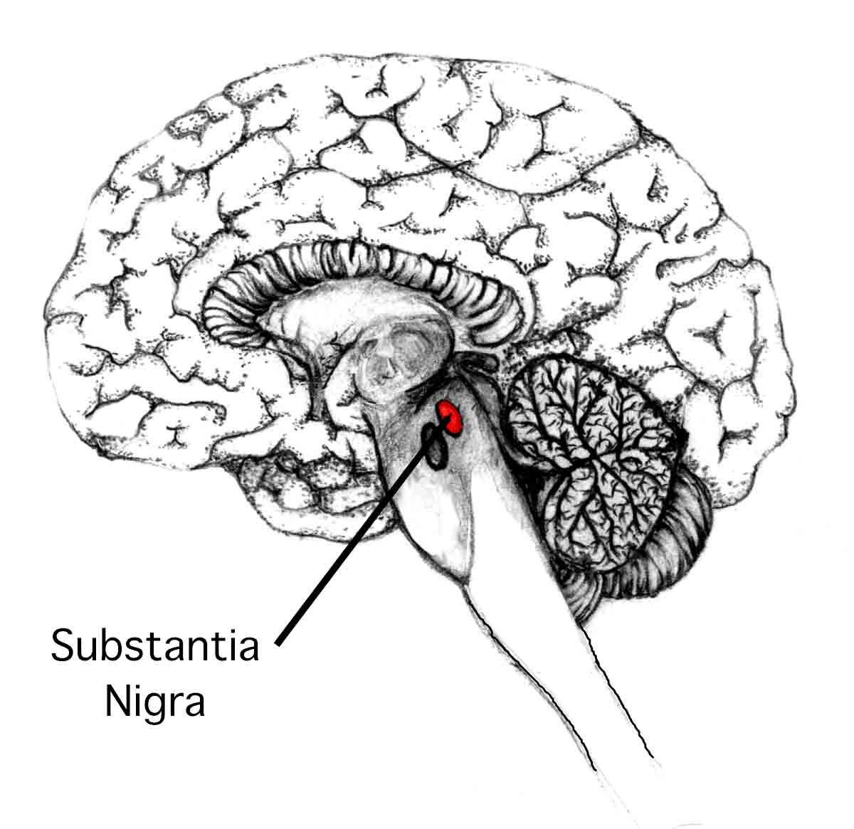 """Nejen astronomové, i patologové mají svou """"temnou hmotu"""" - substantia nigra.  Právě tam se nemocným Parkinsonovou nemocí v neuronech začnou objevovat hnědě zbarvená Lewyho tělíska."""