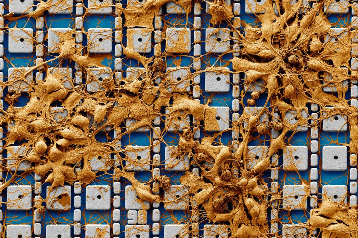 Elektronový snímek kultury neuronů na soustavě nanoelektrod unikátního čipu. Kredit: Harvard SEAS.