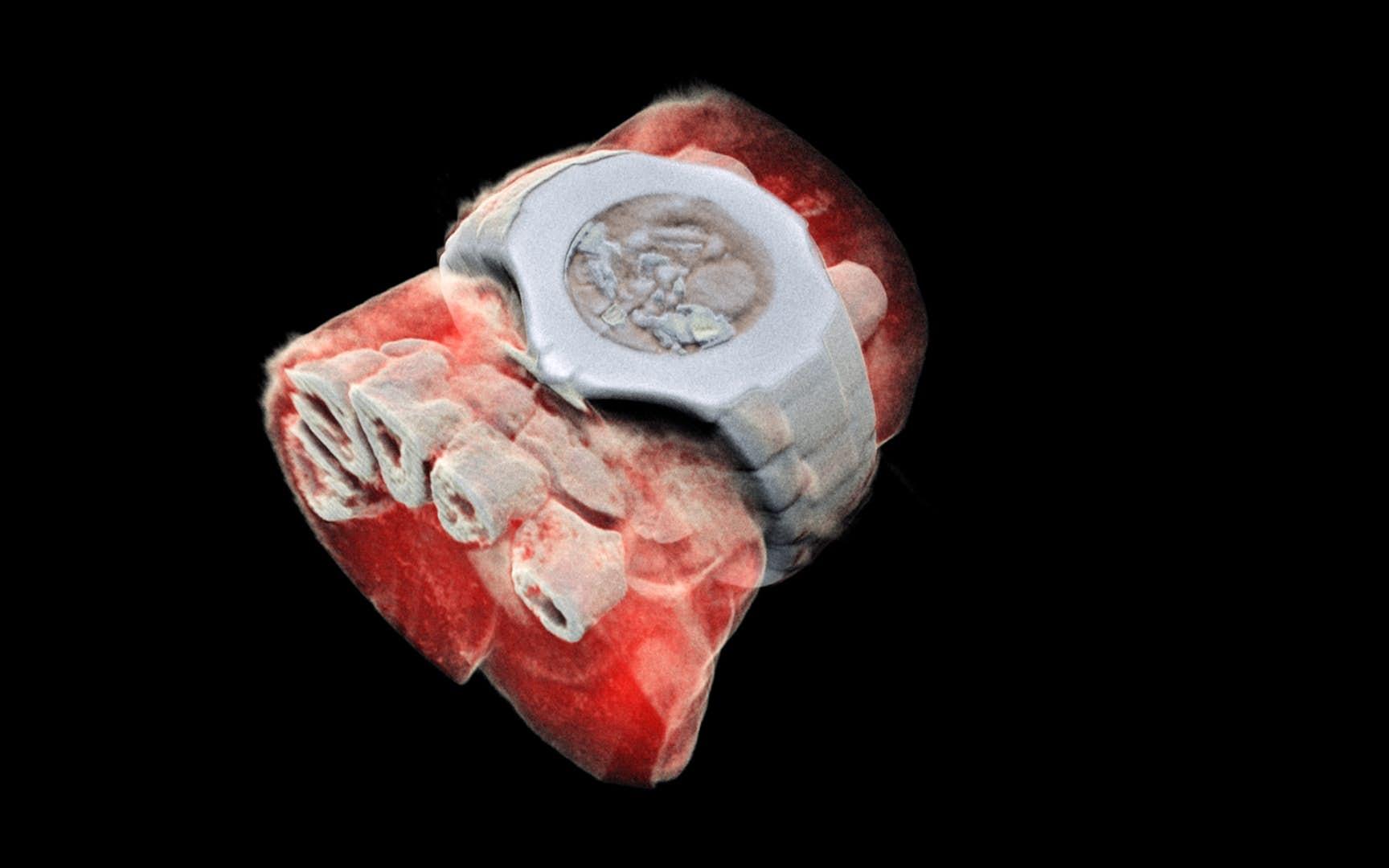 Jeden zprvních barevných 3D rentgenových snímků člověka. Kredit: Mars Bioimaging.