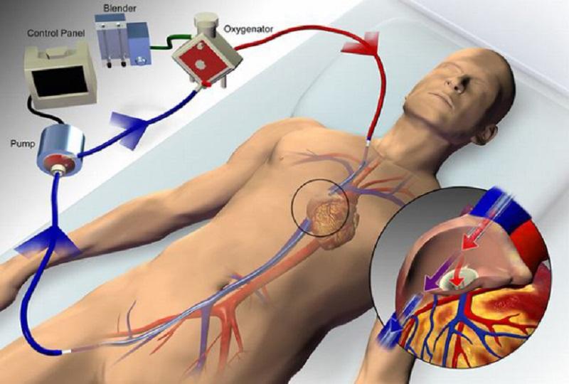 Pripojenie ECMO na krvný obeh pacienta