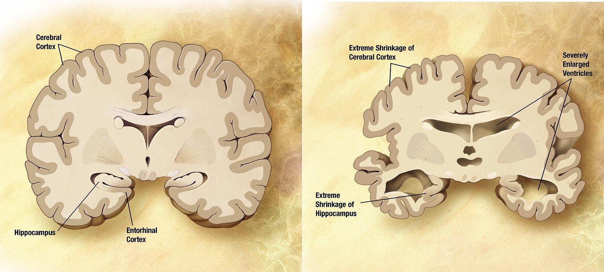 Prierez zdravým mozgom (vľavo) a mozgom pacienta s Alzheimerovou chorobou (vpravo)