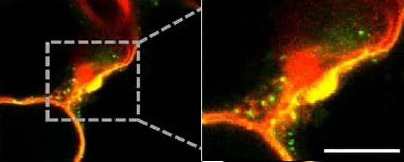 To, co se na snímku jeví jako zelenožluté bublinky, jsou ve skutečnosti kořínkem rostliny do okolního prostředí vylučované váčky obsahující ribonukleovou kyselinu. Kredit: Qiang Cai, Department of Microbiology and Plant Pathology, Center for Plant Ce