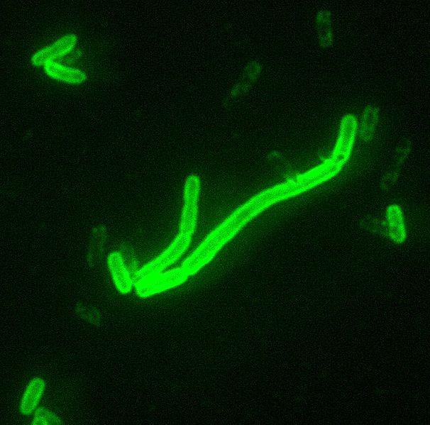 Yersinia pestis, původce moru. Kredit: CDC.
