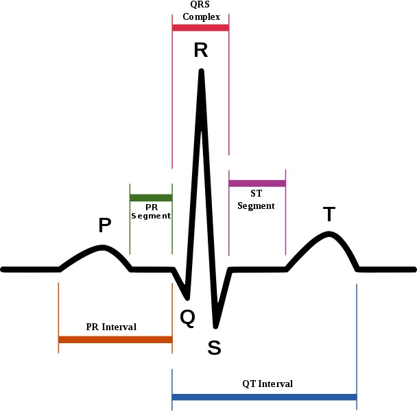 Běžný průběh signálu EKG. Kredit: Agateller (Anthony Atkielski) / Wikimedia Commons.