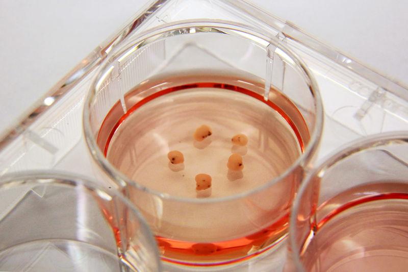 Jednoduché 3D mozkouny zlidských kmenových buněk. Kredit: Genome Institute of Singapore