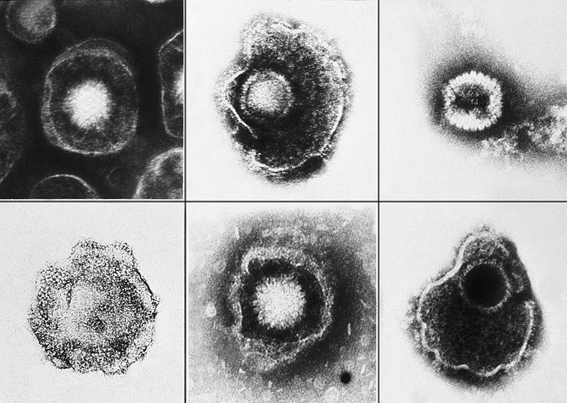 Zlovolné herpesviry. Kredit: CDC/ E. L. Palmer.