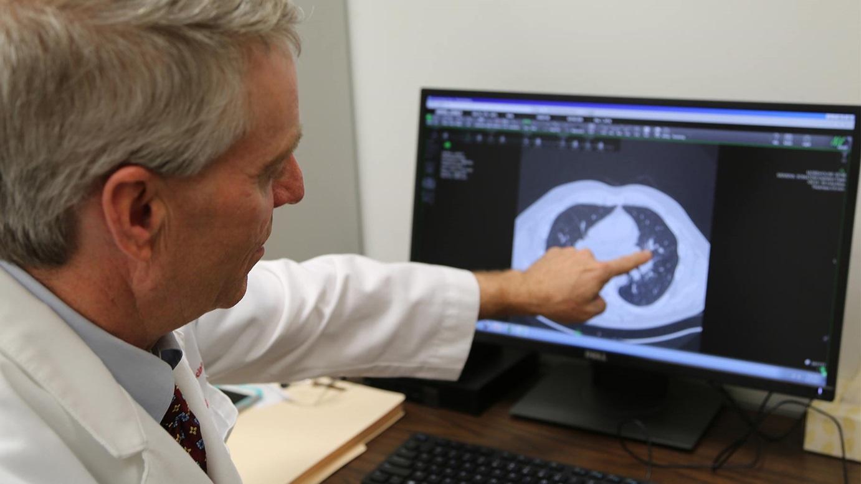 Nemocným s chronickou sarkoidózou plic hned tak něco nepomáhá. Změnit by to mohly bezbolestné náplasti. (Kredit: OSU, Wexner Medical Center)