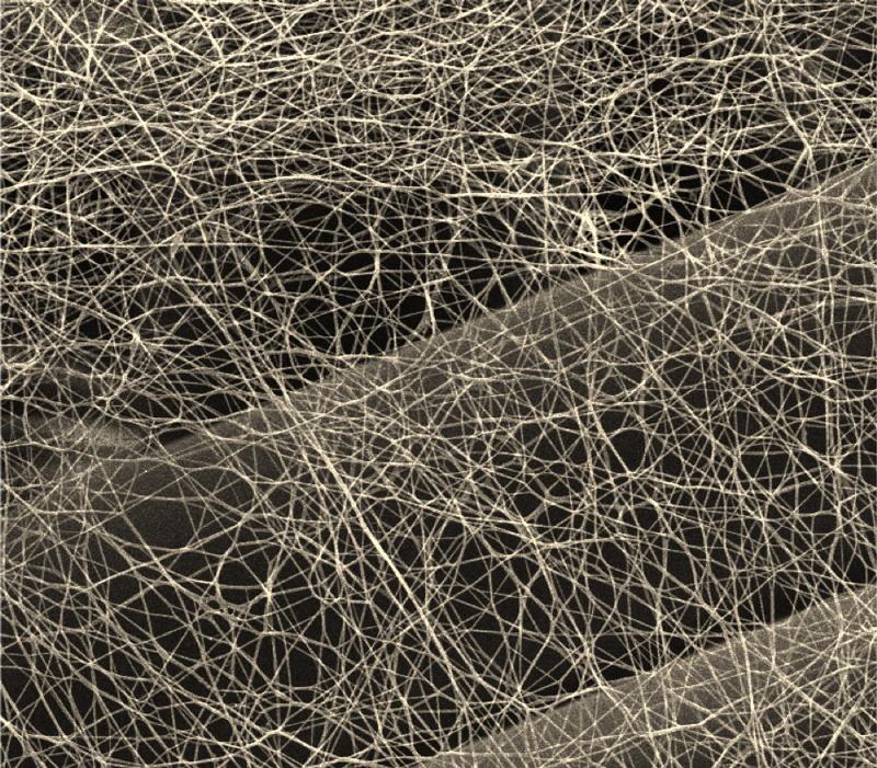 Struktura nanovlákenné vrstvy, zvětšeno 5 000 x. Kredit: J. Kůs.