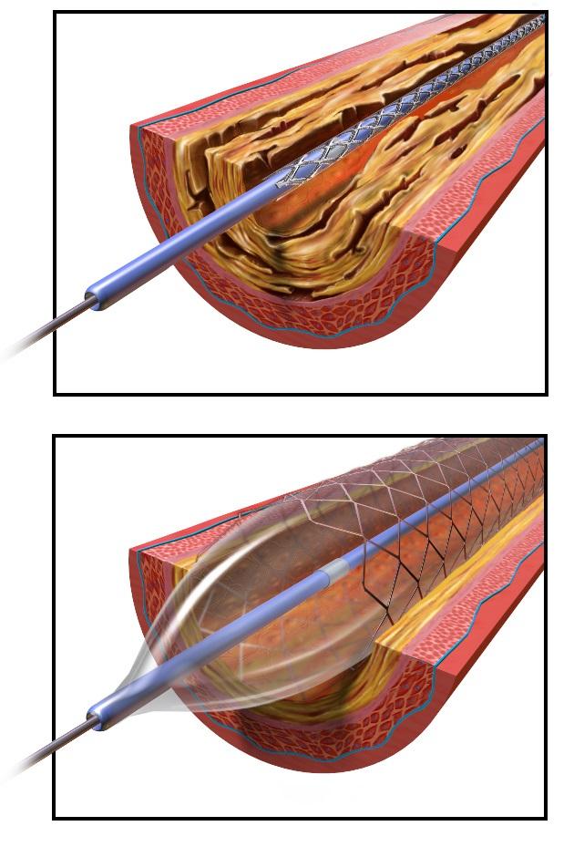 PCI- balónková angioplastika koronárnej artérie. Kredit: BruceBlaus, Wikipedia.