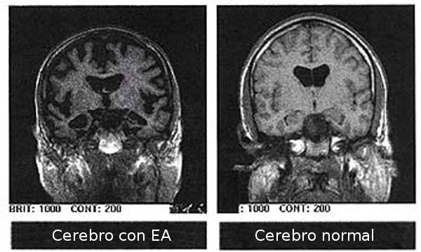 Snímkování MRI (magnetická rezonance) lze u nemocných AD odhalit celkovou atrofii mozku. Ta se projeví až v pokročilém stadiu nemoci. Vpravo je pro srovnání mozek zdravý. (Kredit: Wikimedia,  CC BY-SA 3.0)
