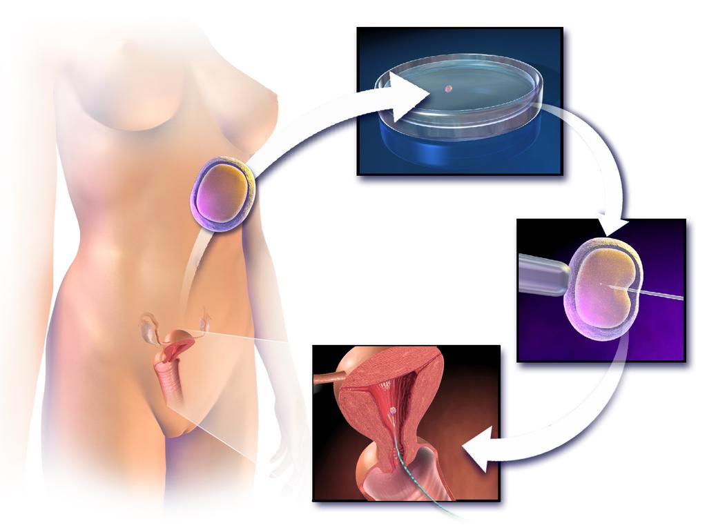 Technika oplodnÄ›nĂ in vitro. Kredit: BruceBlaus. Wikipedia, CC BY 3.0