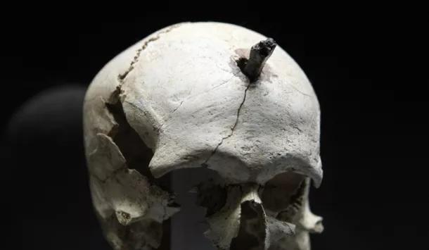 """Jedna z lidských lebek z oblasti Cailar. """"Smůly se jí dostalo"""" ve 3. století před naším letopočtem. Kredit:DR-Radio France"""