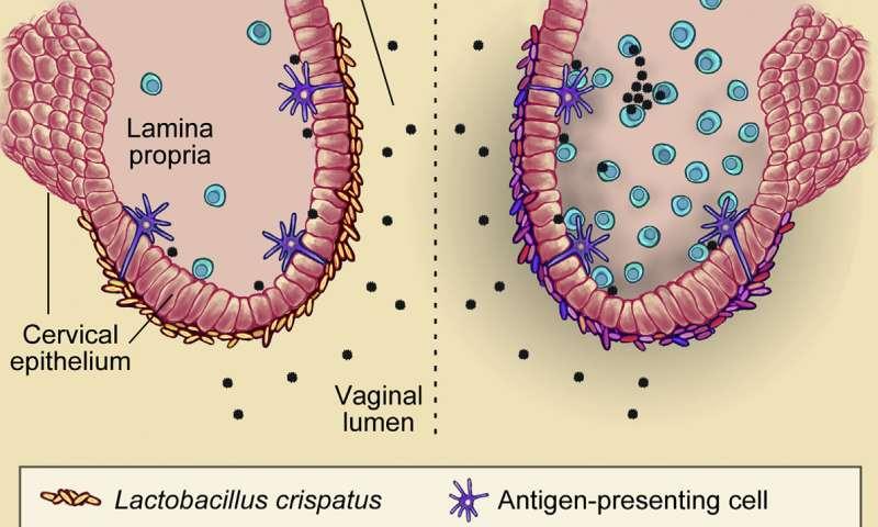 I když v obou případech je v pochvě virových partikulí (černě) stejně, u ženy vlevo vhodné bakterie (zde laktobacily) vytvořily na sliznici jakýsi obranný štít. U té vpravo kryjí povrch sliznice nevhodné bakterie, které vyprovokovaly imunitní systém