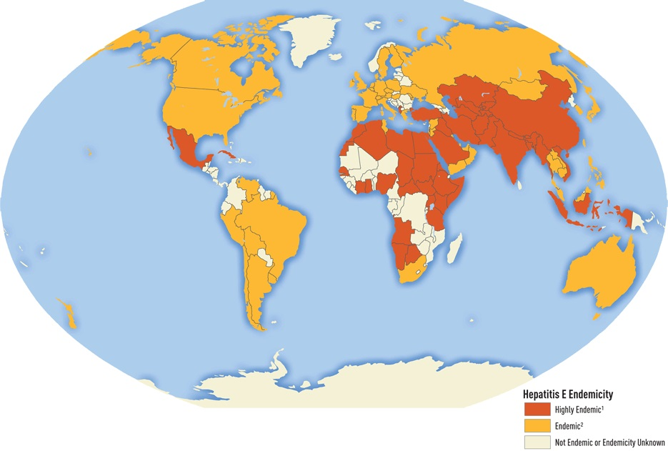 Epidemiologie hepatitidy C. Kredit: Mohd Hanafiah K, Groeger J, Flaxman AD, Wiersma ST. Global Epidemiology of Hepatitis C Virus Infection; New Estimates of Age-Specific Antibody to HCV and Seroprevalence. Hepatology. 2013