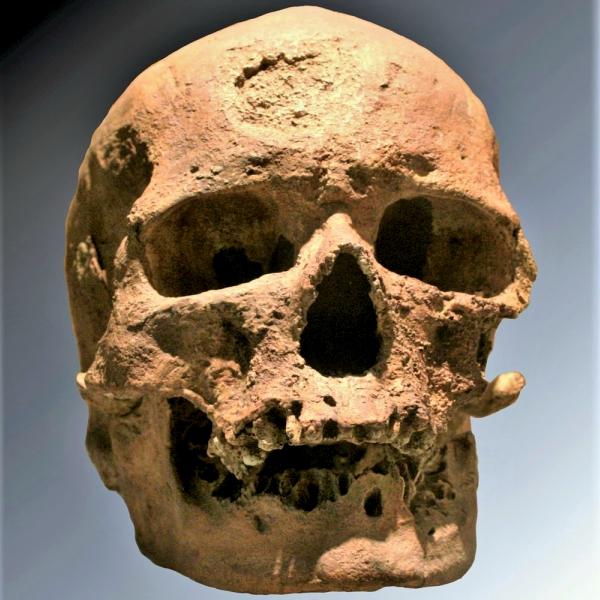 Slavná lebka Cro-Magnon 1, sjasně patrnou stopou po nádoru na čele. Kredit: 120 / Wikimedia Commons.