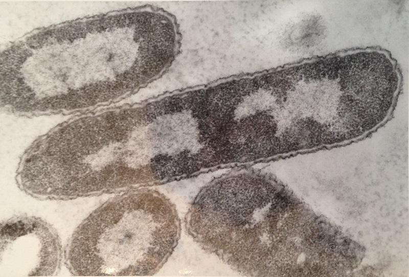 Prvním stabilním polosyntetickým organismem je Escherichia coli. Na snímku je zvětšena 78 000x. (Kredit: Peter Highton )