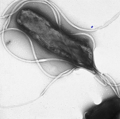 """Helicobacter pylori(název složen ze slov: """"helix""""– šroubovice, """"bacter""""– bakterie, """"pylorus""""– vrátník) je druh mikroaerofilnígramnegativní patogenní bakterie, jež napadá sliznici žaludku. Odhaduje se, že je ve vyspělých zemích touto bakterií infiko"""
