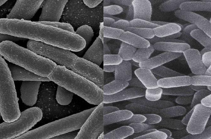 Živé Escherichie coli (vlevo) spolu s laktobacily byly hlavními hráči v podávaném probiotiku. Prospěly k rozvoji dalších střevních bakterií.