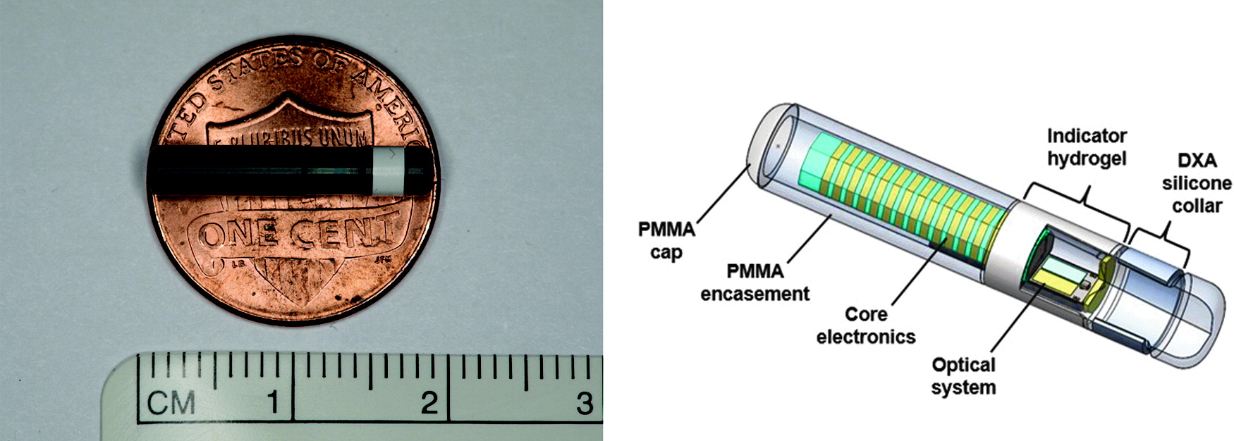 Glukózový senzor Eversense CGM system
