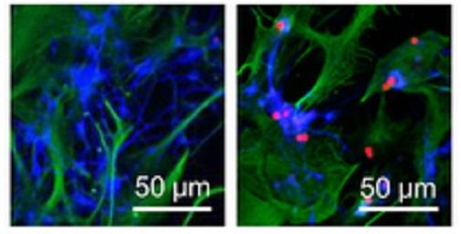 Obrázky ukazují jak neurony uvedené do stresu dopadnou. Vlevo vědci astrocytům jejich ochotu pomáhat ztížili.  Neurony s lenivými astrocyty v kontaktu po 48 hodinách hynou. Na pravém obrázku astrocyty své neurony v jejich špatném čase