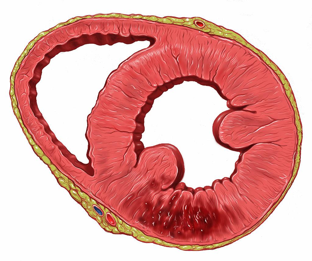 Infarkt - poškození srdeční stěny ischemií. Buňky odumírají, sval se stává nefunkčním. (Kredit: Patrick J. Lynch, medical illustrator, Wikipedia)