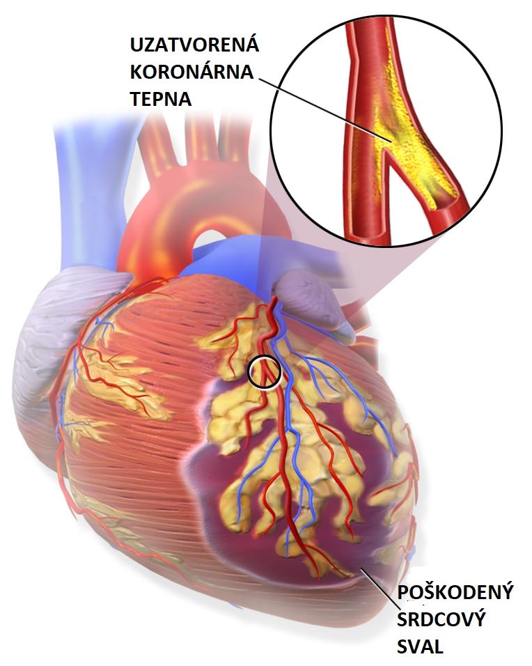 Svalovina v oblasti nedokrvenia pri srdcovom infarkte je poškodená alebo udomiera následkom nedostatku kyslíka. (Kredit: Blausen Medical Communications/Wikipedia/CC-A 3.0)