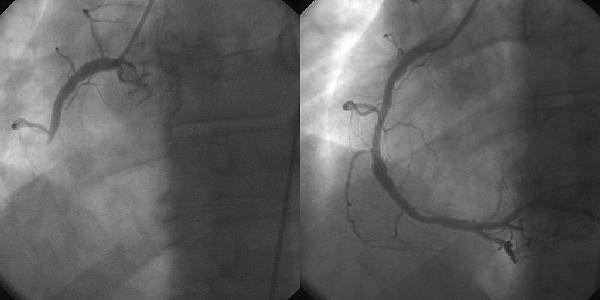 Úspešná koronárna angioplastika pri infarkte myokardu: vľavo stav pred výkonom, vpravo po výkone - v  pravej vetve koronárnej tepny (na obrázku smerujúca nadol) bol obnovený prietok krvi. Kredit: Jheuser, Wikipedia.