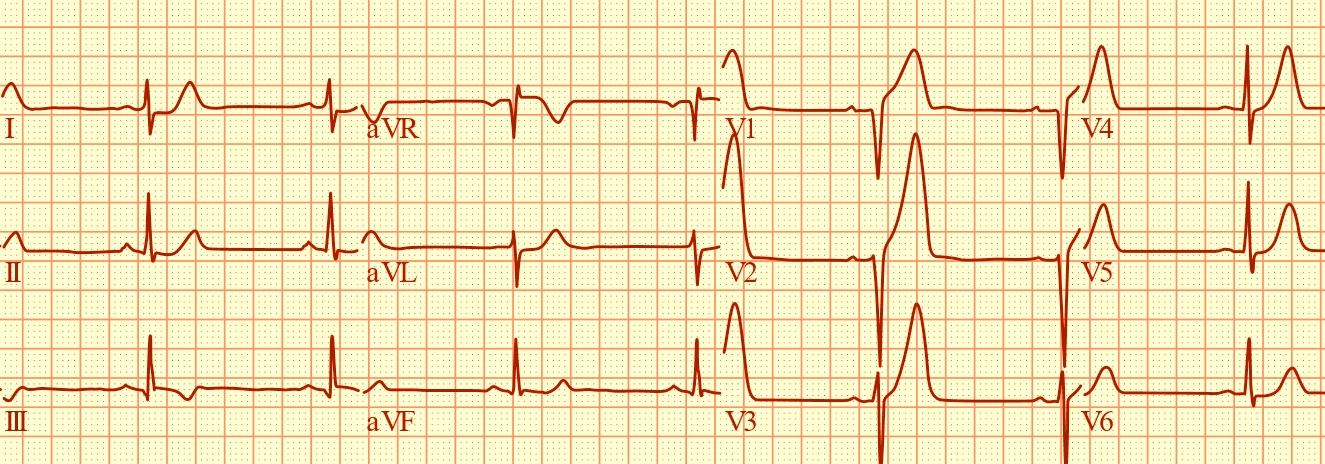 EKG obraz predného infarktu myokardu. Elektrokardiografia znamenala prvý prielom v diagnostike infarktu.