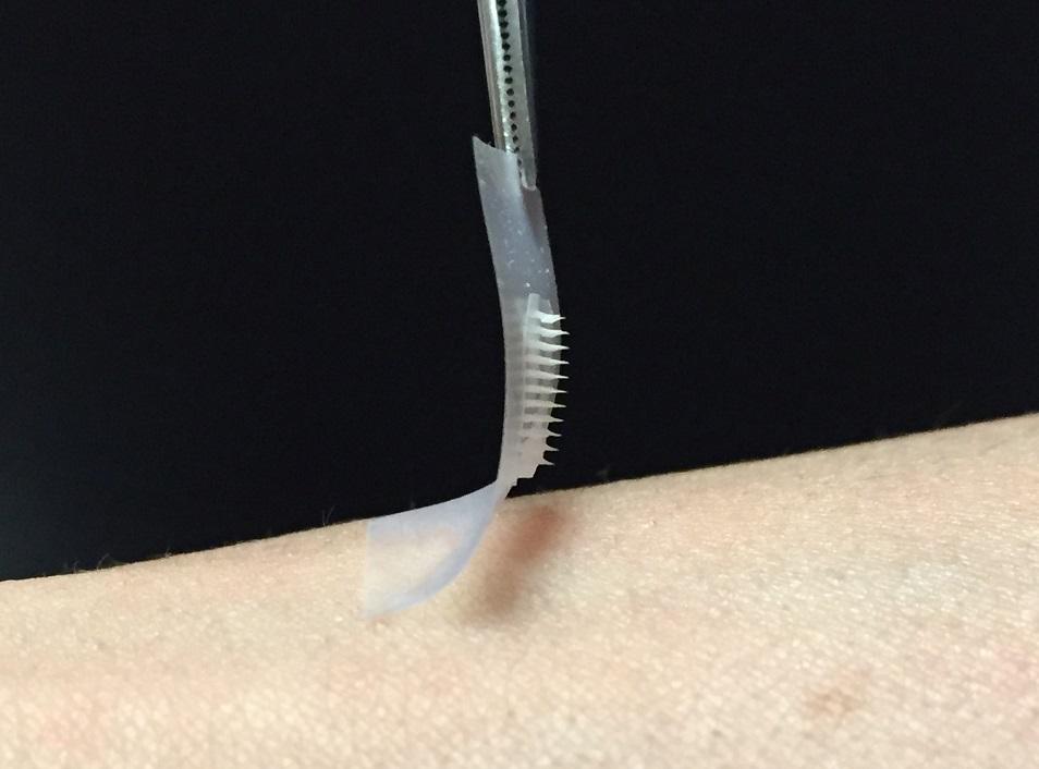 Zhen Guem připravené inteligentní nanočástice hlídají hladinu cukru v krvi a aplikují se stovkou drobných rozpustných jehliček. (Kredit: Zhen Gu)