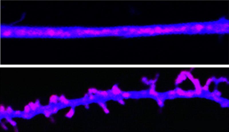 Paměťové stopy jsou ukládány pomocí prionovým proteinům podobným molekulám. Vědci je nazvali CPEB. V mozku udržují synapse (spodní část obrazu). Když CPEB priony inaktivujeme, synapse se hroutí a paměť slábne (viz stejný neuro