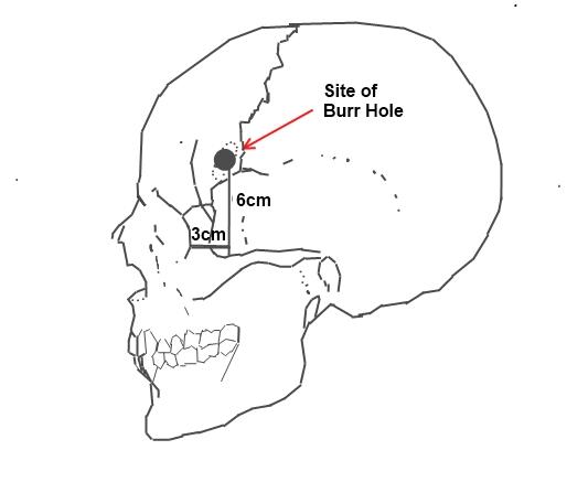 Místo vrtu při pre-frontální lobotomii propagované doktory Freemanem a Wattsem.  (Kredit: FiachraByrne, Wikipedia, CC BY-SA 3.0)