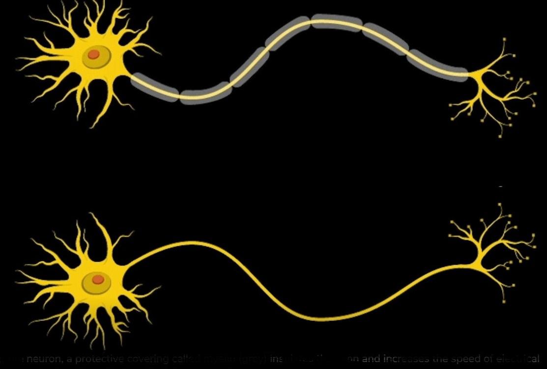 Neurony mají na svém povrchu ochranný obal nazývaný myelin (šedě). Izoluje axon a umožňuje  elektrickou komunikaci mezi neurony. Nemocní Williamsovým syndromem mají vrstvu myelinu  tenkou, vzruch se šíří pomalu. Kredit: Opus Design.
