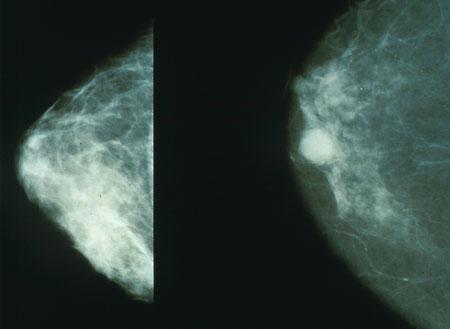 Snímek z mamografu. Levá polovina normální stav, vpravo nádor. Mamografické vyšetření jerentgenovévyšetření. Kredit: National Cancer Institute.