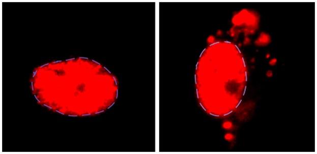 """Za normálních okolností se """"U2-snRNP"""" (červeně) nachází v jádru motorických neuronů (vlevo). U nemocných ALS a též u postižených frontotemporální demencí (FTD), se hromadí vně jádra jejich neuronů. Příčinou je v článku pospaná mutace.Kredit: Reed La"""