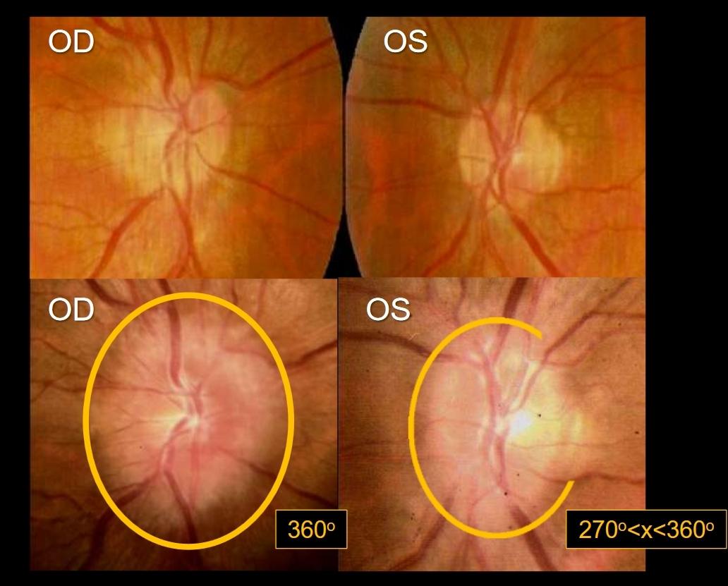 Opuch optického disku oka na snímkach očného pozadia (sietnice) pred kozmickým letom (hore) a po ňom (dole). Kredit: NASA.
