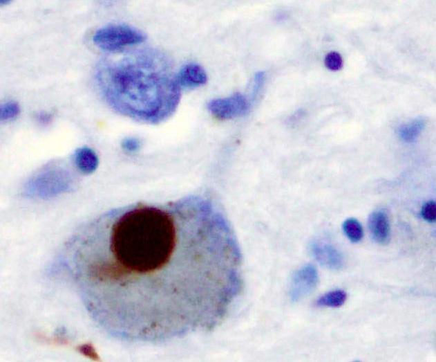 """Alfa-synuclein lze imunochemickým barvením zviditelnit. U parkinsoniků jsou jeho hnědé shluky v mozkových neuronech v oblasti Substantia nigra zřetelně vidět. Z doby, kdy se netušilo co znamenají, se jim i dnes říká """"Lewyho tělíska"""". Kredit: Wikipedi"""