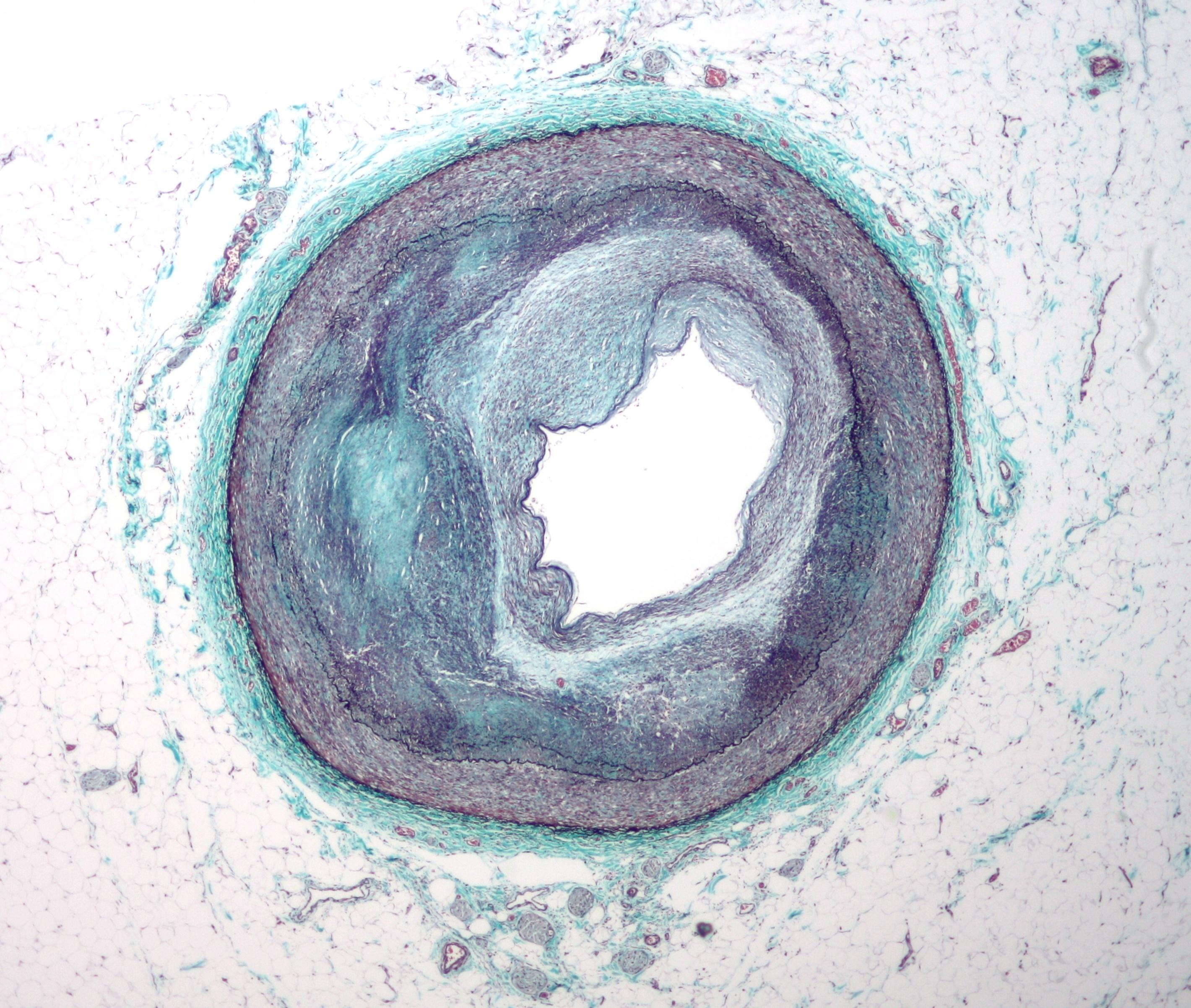Prierez koronárnej artérie, zúženej aterosklerózou