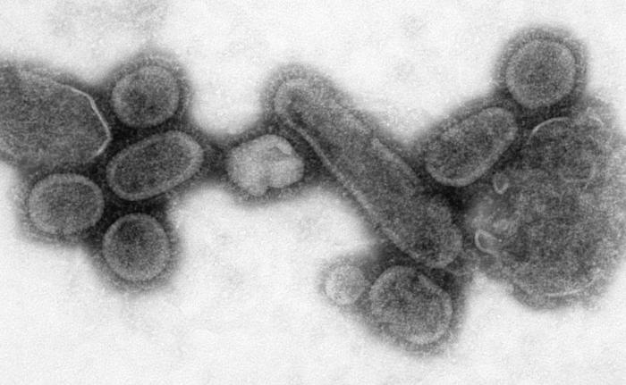 """Ačkoliv původce pocházel z Asie, paradoxně se mu přezdívalo """"španělská chřipka"""". Šlo o virus A H1N1. Typem tedy stejný virus u něhož kultivace na vejcích se může zavinit problém neúčinnosti. Je proto obávanou hrozbou dodnes. Kredit: CDC."""