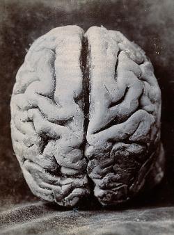 Fotografie mozku, který pitval Alkmaión, není dosažitelná. Kredit: Wikimedia Commons.