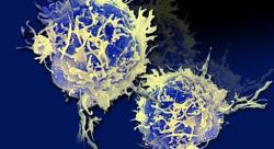 Th17 buňky, nebo také pomocné T lymfocyty (T helper 17 cells) jsou producenty prozánětlivého interleukinu. Omezení počtu těchto buněk znamená menší produkci interleukinu 17  Kredit: The New York Academy of Sciences