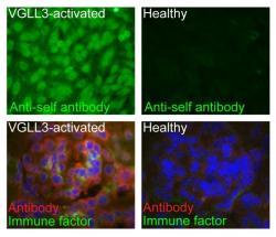 Rozdíly v přítomnosti autoimunitních protilátek a imunitních faktorů v krvi (nahoře) a ledvinách (dole) u myší s nadbytkem VGLL3 (levý sloupec) ve srovnání se zdravými myšmi (pravý sloupec). Kredit: University of Michigan.