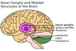 Pro Huntingtonovu chorobu je charakteristickým znakem selektivní ztráta neuronůvbazálních gangliích. Ta jsou součástíkoncového mozku- telencephalonu a podílejí se na koordinaci pohybů. Proto  pacienti HD  trpí mimovolními rychlými pohyby, tzv. choreou. Prvními příznaky nemoci bývají únava a deprese,postupně se pčidávají psychóza paranoiaa progresivnídemence. Kredit: John Henkel, FDA.