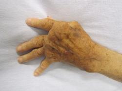 Těžká forma reumatoidní artritídy. U žen je 2–3× častější. Kredit: James Heilman, Wikipedia.
