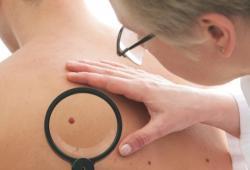 Melanom není nejčastější typ rakoviny kůže, zato je ale tím nejzávažnějším. Mateřská znaménka jsou kožní útvary různé velikosti vzniklé místním nahromaděním melanocytů, kterým se odborně říká pigmentové névy. Jsou nezhoubné ale svým nositelům riziko vzniku rakoviny zvyšují čtyřikrát. (Kredit: University of Melbourne)
