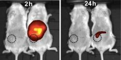 Úspěšný zásah nanočástic proti lidskému nádoru prsu vmyši. Kredit: American Chemical Society.