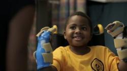 Zion Harvey se ve svých osmi letech stal prvním dětským pacientem s transplantovanýma rukama.  Kredit: The Childrens Hospital of Philadelphia
