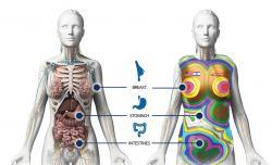 Zobrazení orgánů, které má vesta chránit, v daných místech jsou vrstvy materiálů vhodně zesíleny. Pohled zepředu. (Zdroj StemRad).