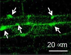 Zobrazení fotoreceptoru phy B, který je po ozáření přesunován do jádra. Zobrazení bylo provedeno pomocí fluorescenčního proteinu navázaného na fotoreceptor. Kredit: Hyo-Jun Lee, SNU.
