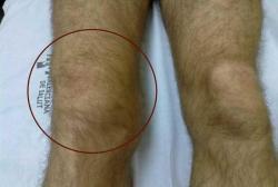 Hemartros- zakrvácanie do kolenného kĺbu, časté pri hemofílii. Kredit: Felipe Querol, et al., Apunts Med Esport. 2011.