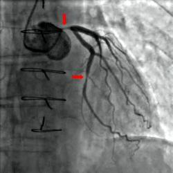 Nález zúžených úsekov koronárnych tepien na snímke z koronárnej angiografie. (Kredit: Wikimedia)
